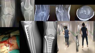 Tibial plateau fracture after a skiing accident⛷Frattura del piatto tibiale dopo caduta sugli sci