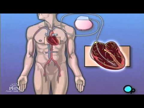Permanent Pacemaker Implant Surgery