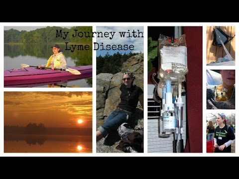 My Journey with Lyme Disease (VEDA Day 18)