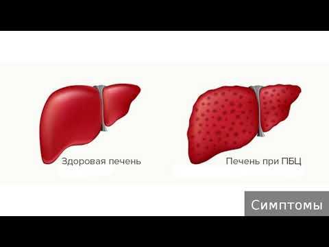 Первичный билиарный цирроз. Как лечить первичный билиарный цирроз.