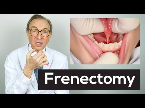 What Is A Frenectomy?