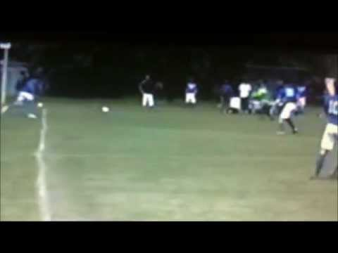 Tibia Fibula Fracture & Recovery (Soccer)