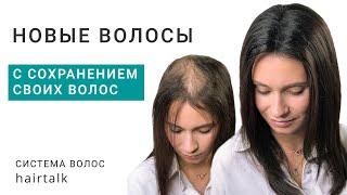 Фиксация системы волос с сохранением оставшихся волос при женской алопеции