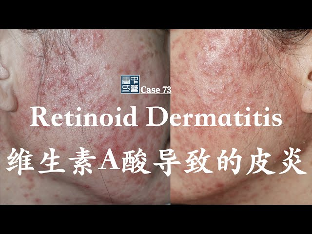 Retinoid Dermatitis, Vitamin A derivative induced dermatitis,  维生素A酸导致的皮炎
