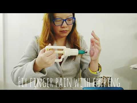 Fix Finger Pain Fast with Cupping