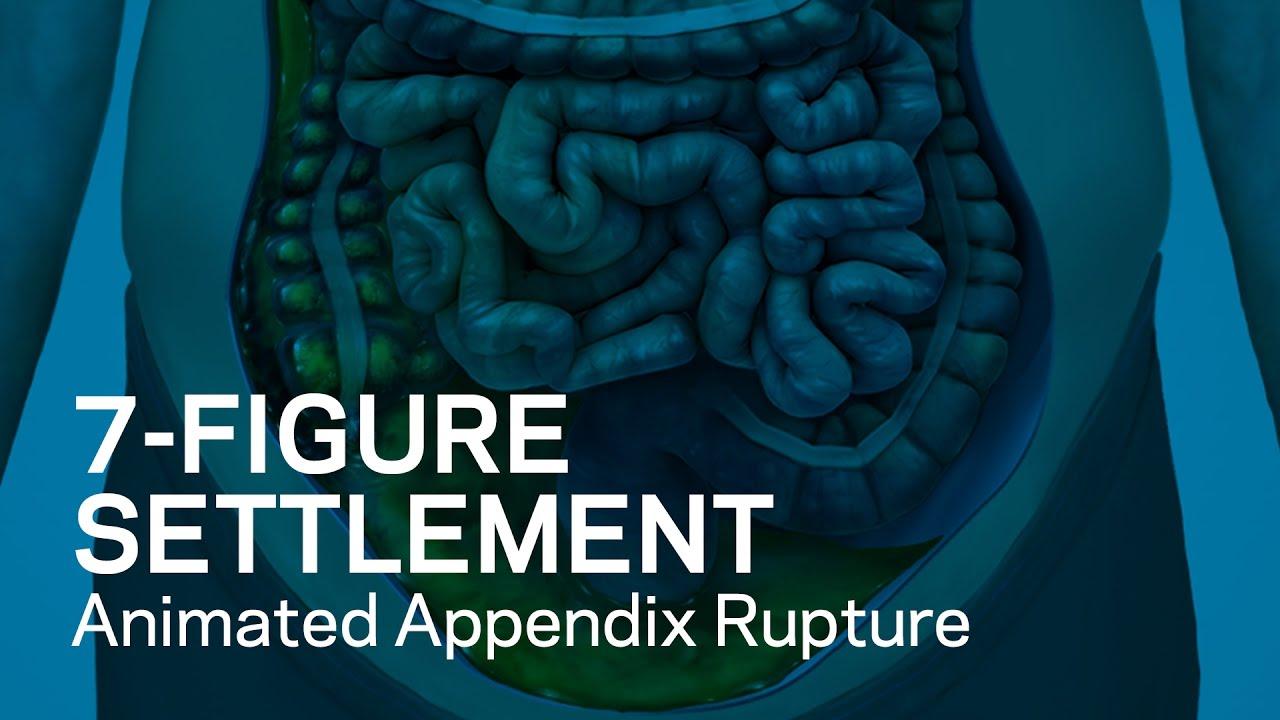 7 Figure Settlement Animated Appendix Rupture Youtube