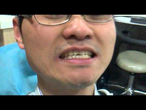 Shanghai Dentist - Jsmiles Dental Clinic for Cosmetic and Restorative Dentistry