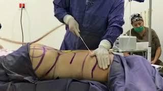 Liposuction Chula VIsta - 25/03/2019 - Mp3 Download