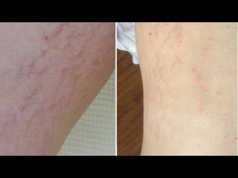 Лазерное удаление растяжек. Эффект через неделю после процедуры  (до и после)