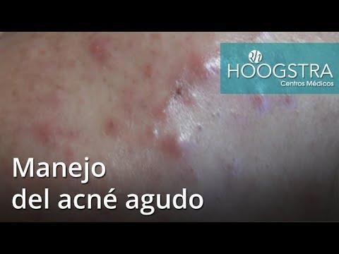 Manejo del acné agudo (17092)