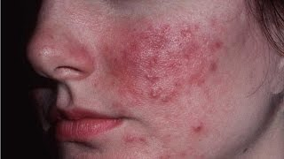 Home Remedies for rosacea | Red Face | How to get rid of Rosacea