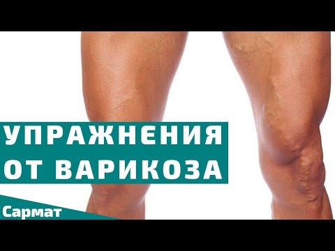 Три упражнения от варикоза | Гимнастика против варикозного расширения вен