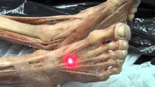 Мышцы стопы. Анатомия(Ретинакулюм экстензорум на мышечном трупе ПОДПИСЫВАЙСЯ НА КАНАЛ!!!!! И НЕ ПРОПУСТИ НОВЫЕ ВИДЕО. Ставьте..., 2015-12-09T20:37:57.000Z)