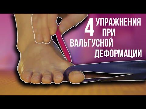 Вопрос: Как предотвратить появление шишки на большом пальце стопы?