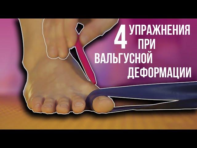 4 упражнения при вальгусной деформации