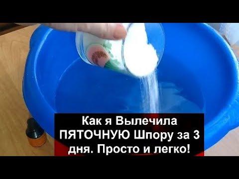 ПЯТОЧНАЯ Шпора Как вылечить за 3 дня Пяточную Шпору.helen Marynina