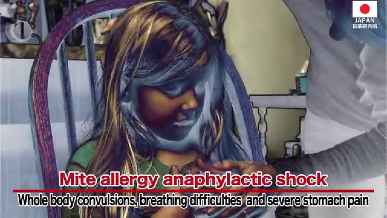 how to prevent dust mite allergies youtube. Black Bedroom Furniture Sets. Home Design Ideas