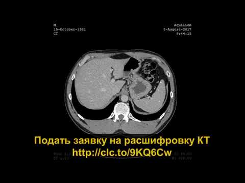 РАСШИФРОВКА КТ органов брюшной полости с контрастированием с кальцификатами в печени и селезенке