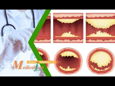 Облитерирующий атеросклероз нижних конечностей. Причины, симптомы и лечение