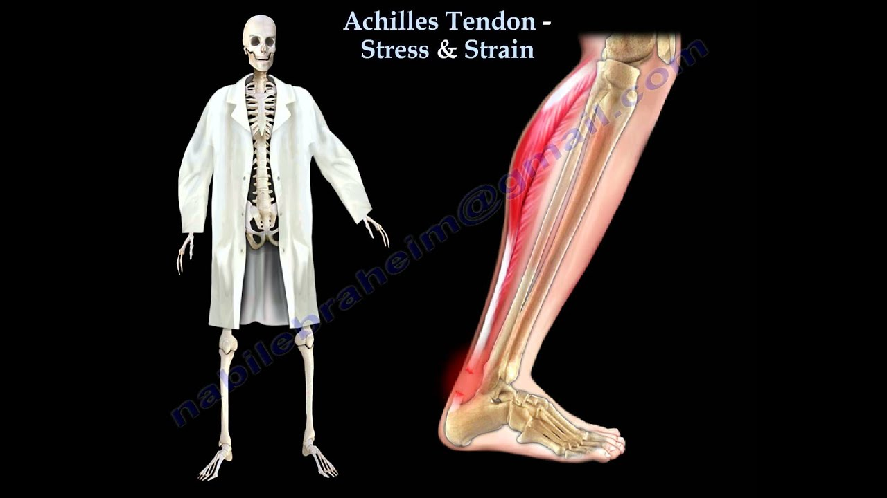 Achilles Tendon Stress & Strain - Everything You Need To Know - Dr ...