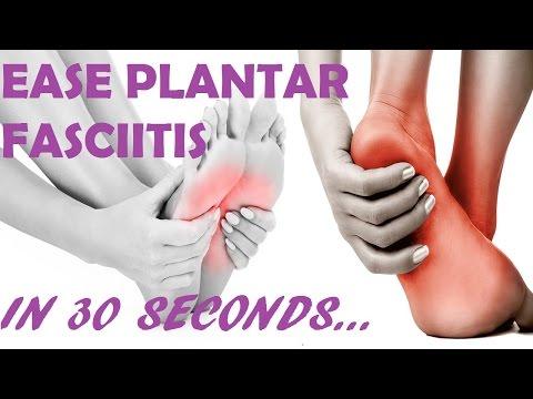 Plantar Fasciitis 2017