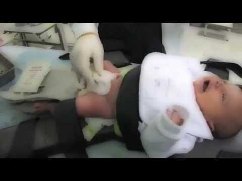 pain control during infant circumcision Goal for pain management, patient preferences for treatment, age, type of pain, risk for cognitive impairment, history of chemical dependency, chronic pain and cultural beliefs and practices.