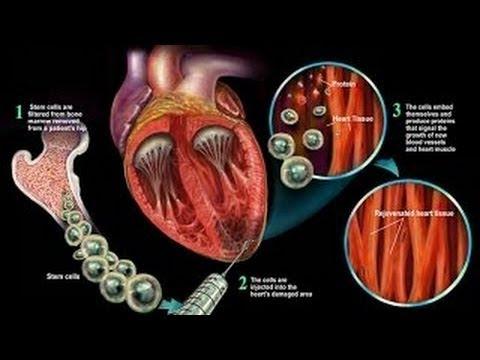 Science Documentary: Stem Cells,Regenerative Medicine,Artificial Heart,a future medicine documentary