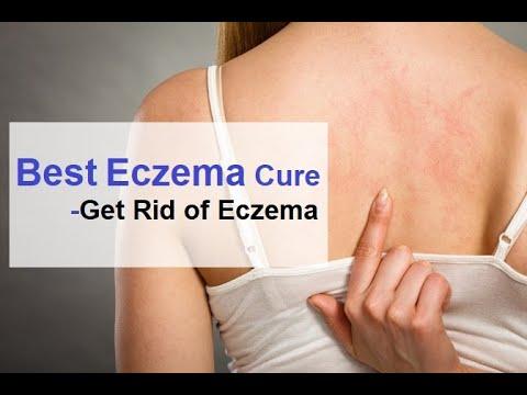 Best Eczema Cure Get Rid of Eczema