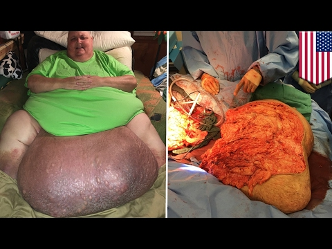 Ingrown hair turns into 140-pound tumor in man's stomach that needed surgical removal - TomoNews