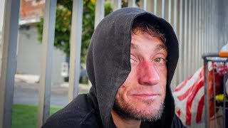 Los Angeles Homeless Man's Isolation Is Causing Mental Health Challenges