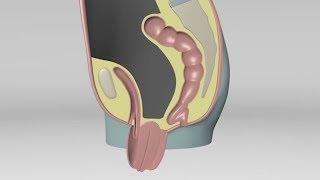 Безопасное хирургическое лечение опущения матки, влагалища, мочевого пузыря (генитального пролапса)