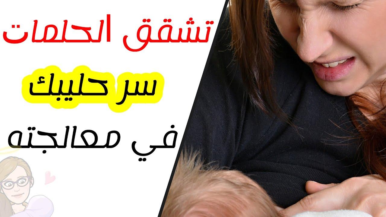 تشقق الحلمات الاسباب و العلاج في فترة الرضاعة الطبيعية كيفية تقديم الثدي للطفل تشقق الحلمة Youtube