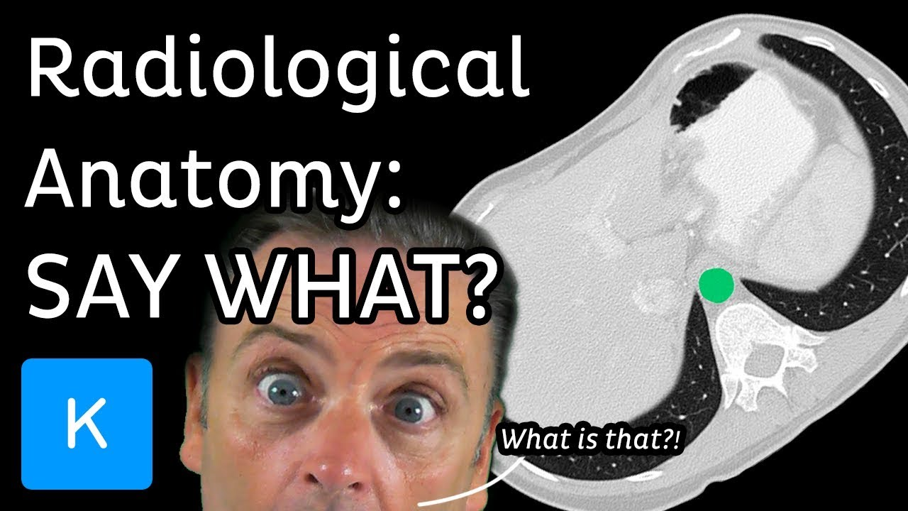 Radiological Anatomy What Is It Kenhub Youtube