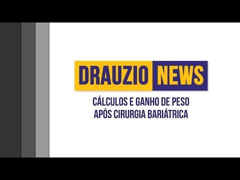Cálculos e ganho de peso após cirurgia bariátrica  Drauzio News 12