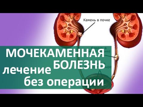 🔷 Мочекаменная болезнь. Лечение мочекаменной болезни в ЦЭЛТ
