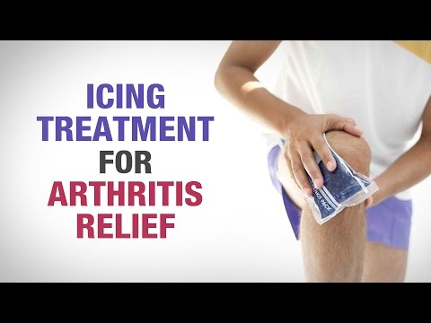Icing Treatment for Arthritis Relief - Dr. Gaurav Sharma - Defeating Arthritis