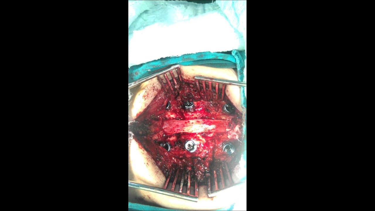 spondylolisthesis operation