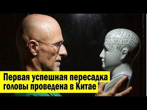 видео: Первая успешная пересадка головы человека проведена в Китае