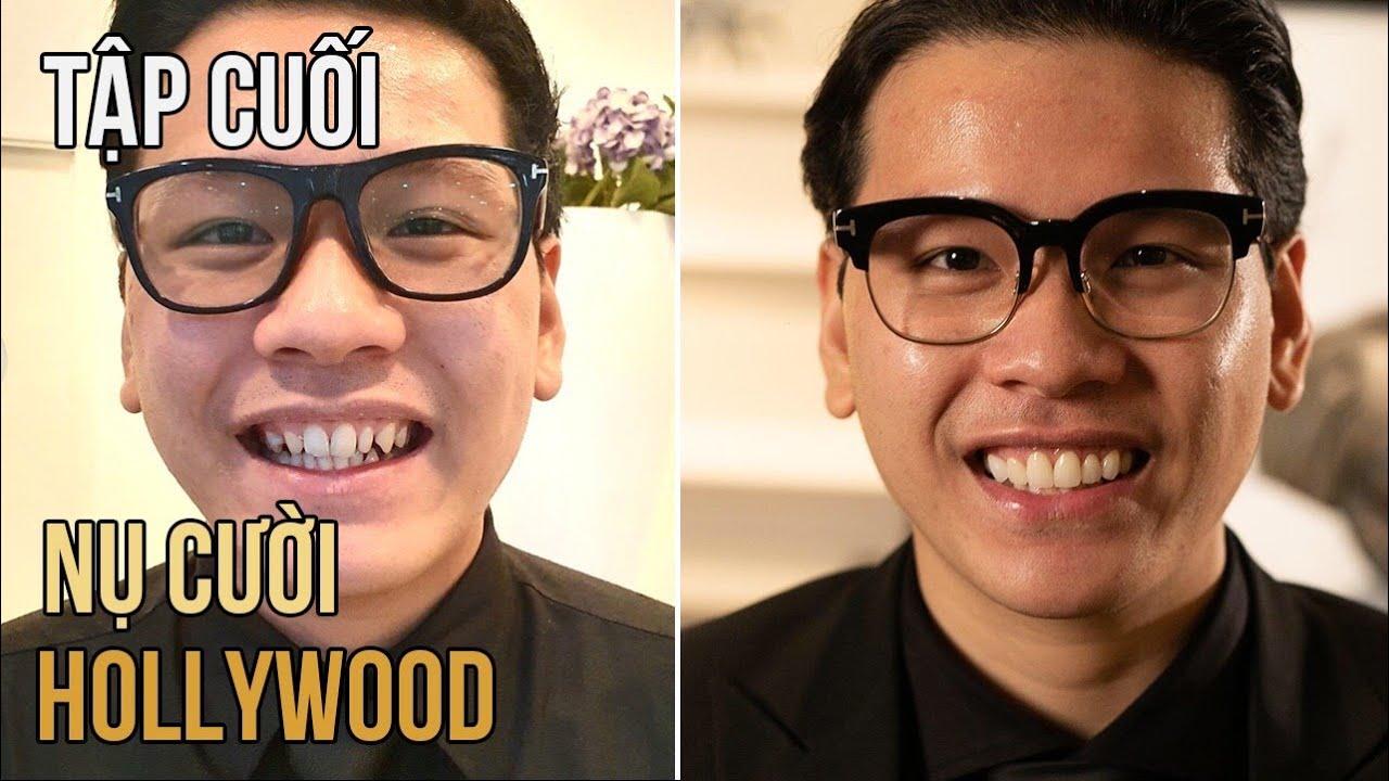 Nụ cười Hollywood cho Trợ Lý Vũ - Tập 2