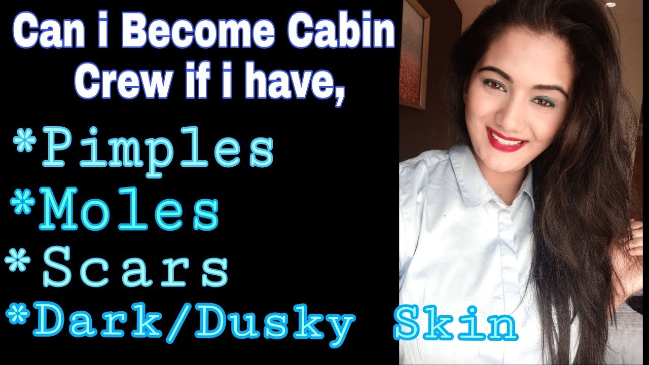 Can I become a Cabin Crew/Air Hostess if I have Moles, Pimples,Scars & Dark  Skin