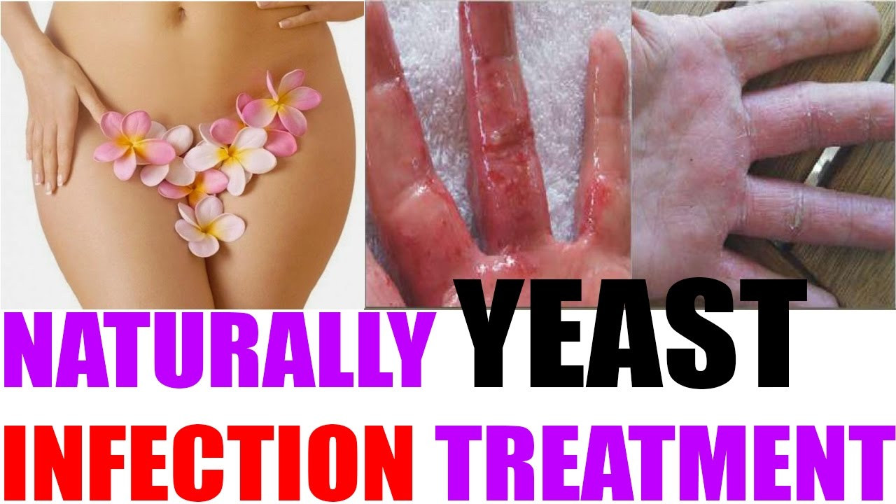 Home Remedies For Yeast Infection Treatment | How to naturally Treatment  for Vaginal Yeast Infection