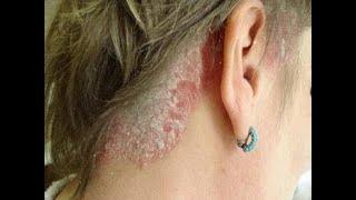 Лечение псориаза на голове Немедикаментозная терапия и самые эффективные препараты от псориаза