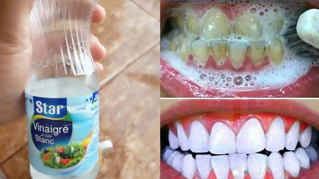 ملعقتان خل و تخلصي من اصفرار الاسنان من الإستعمال الأول و إلى الأبد مضمونة و مجربة