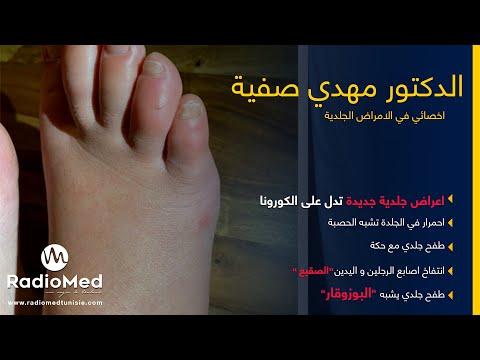 اعراض  جلدية جديدة تدل على الاصابة بالكورونا