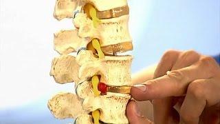 видео Витамины при остеохондрозе шейного и поясничного отделов