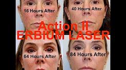 Action II Erbium Laser Resurfacing - Step-by-step procedure start to finish with Dr. Weiner