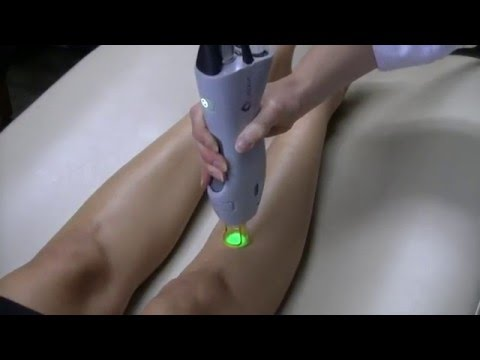 Laser Hair Removal | Moradi MD