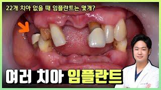 임플란트 전후 사진 - 22개 치아 없을 때 임플란트 …