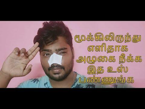 Clean your Nose Easy way Pore Strip   Mottamaadi