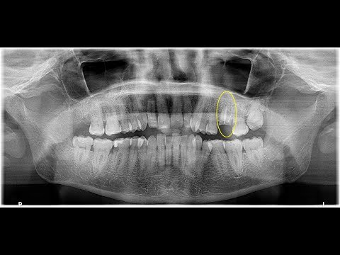 Root sectioning technique to remove upper 1st molar roots